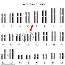 Кариотип при синдроме Патау характеризуется тремя 13 хромосомами
