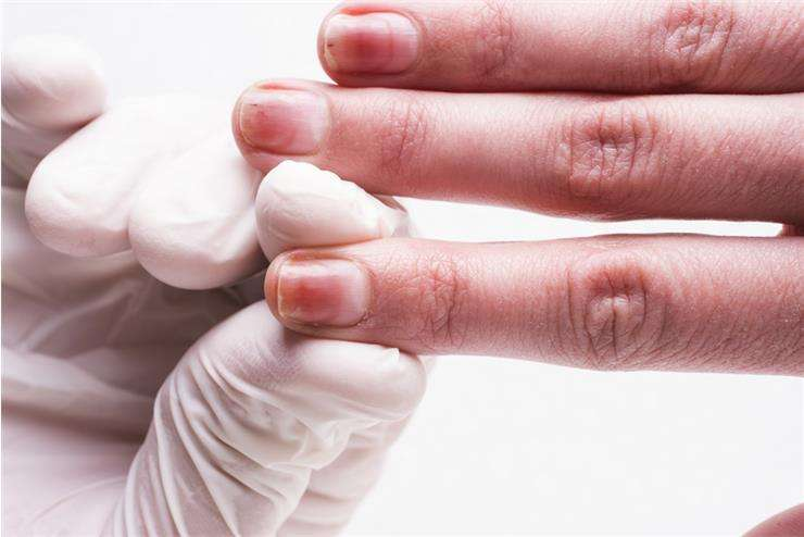 онихолизис ногтей