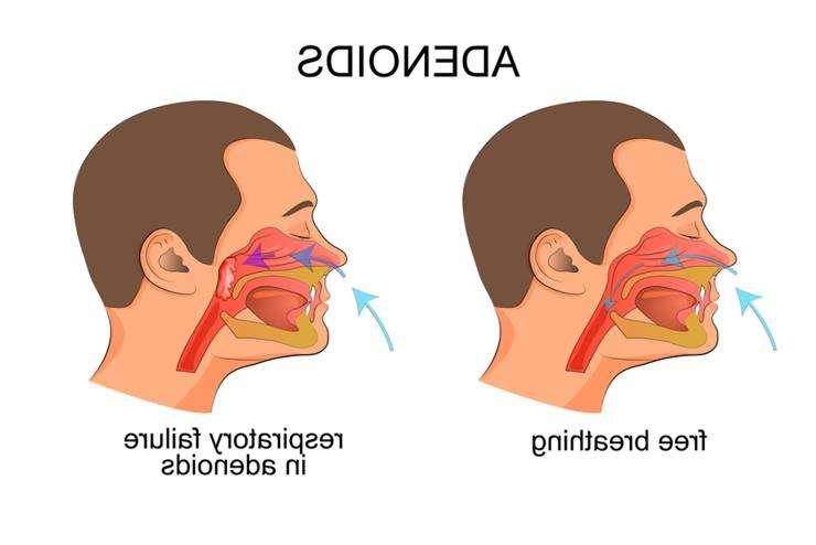 эндоскопическая