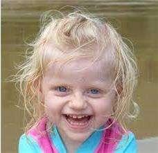 Внешний вид у детей с синдромом Ангельмана